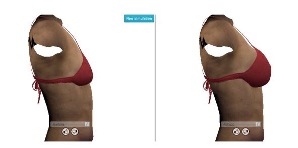 3D-breast-implant-imaging