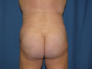 after-buttocks-augmentation-with-fat-grafting-brazilian-butt-lift