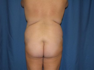 before-buttocks-augmentation-with-fat-grafting