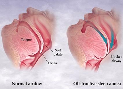 Alternative medicine for sleep apnea