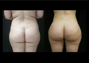 brazilian-butt-lift-before-and-after