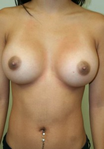 TUBA-breast-augmentation-after-photo