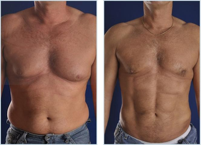 vaser-hi-def-liposuction-before-and-after