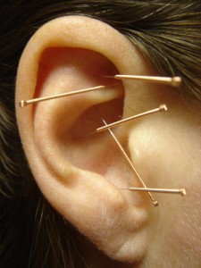 acupuncture-to-lose-weight