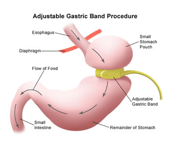 gastric-lap-band