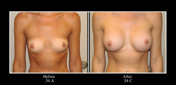 before-and-after-breast-augmentation-a-cup-to-c-cup-photos