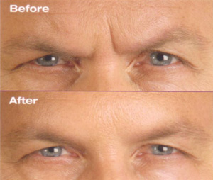 botox-before-and-after-forehead-wrinkles