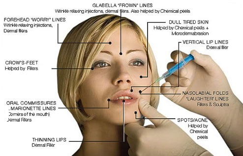 botox-injections-face