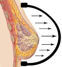 brava-breast-augmentation
