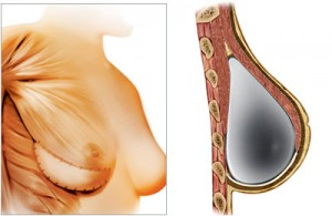 breast-reconstruction-with-implant