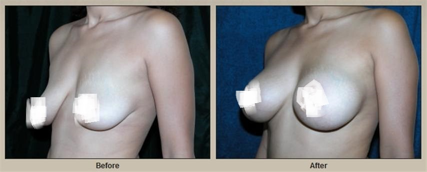 breast-lift-with-breast-augmentation