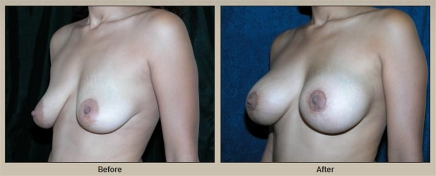 Breast augmentation and might need a lift