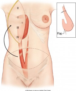 breast-reconstruction-abdominal-flap