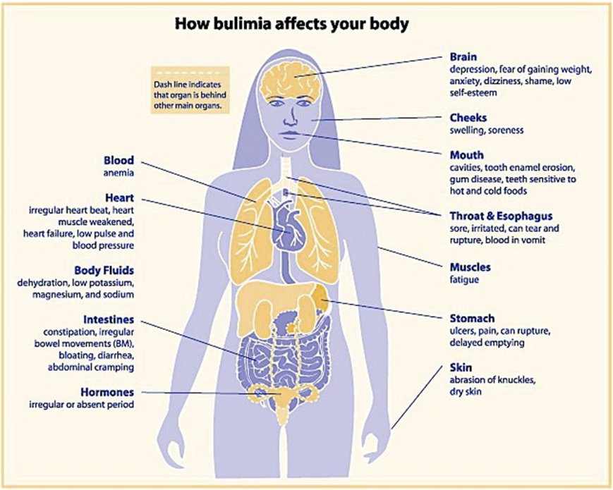 bulimia causes symptoms and treatment Psychological treatments cognitive behavioural therapy (cbt) is the most commonly used 'talking' (psychological) treatment for bulimia it helps you to look at the reasons why you developed bulimia cbt aims to change any false beliefs that you have about your weight and body.