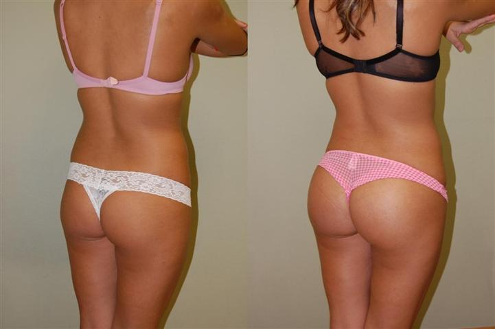 Before And After Butt Implants 116