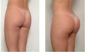 gluteal-implants-before-after