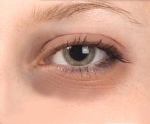 treatment-for-dark-circles-under-the-eyes