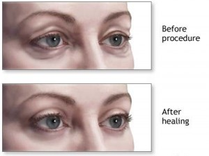 eyelid-surgery-before-after