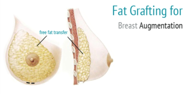 injection of fat in breast