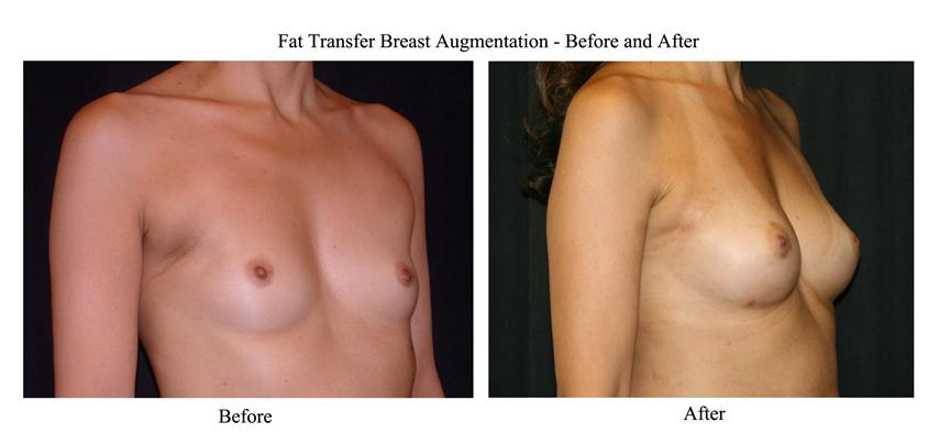 Fat grafting with breast reconstruction