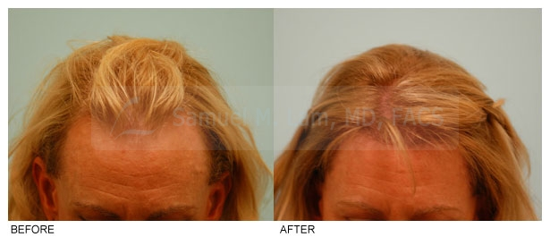 female-hair-restoration-central-density-before-and-after