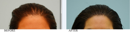female-hair-restoration-hairline-lowering-before-and-after