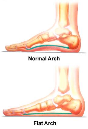 Flat Foot - Net Health Book