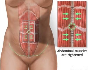 full-abdominoplasty