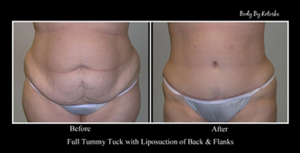 full-tummy-tuck-before-and-after-photos