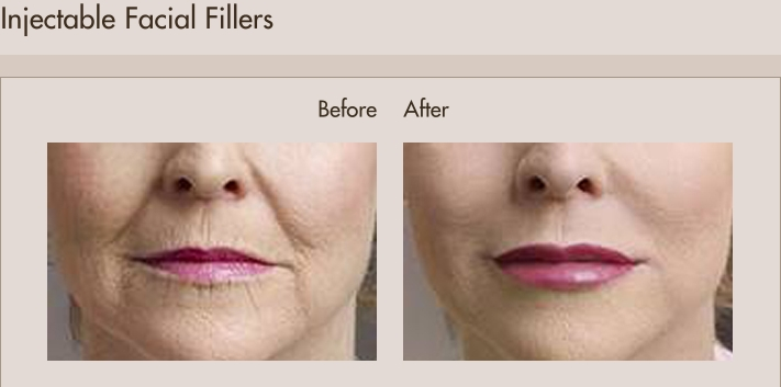 injectable-facial-fillers-before-and-after