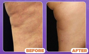 cellulaze-laser-cellulite-treatment