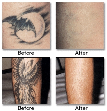 Laser surgery hair acne cosmetic laser surgery prices for How to remove a fresh tattoo