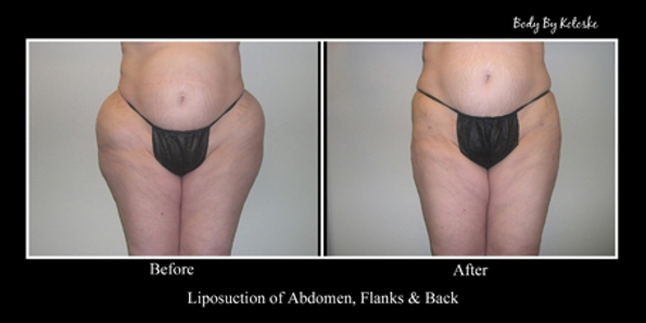 liposuction-hips-before-and-after-photos