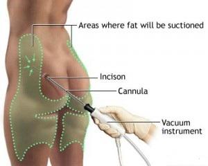 liposuction-procedure