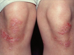 psoriasis-on-the-knees