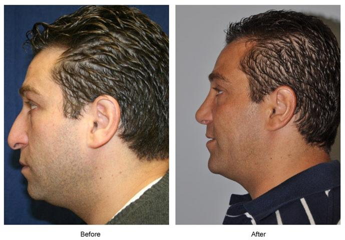 rhinoplasty-before-and-after-photos