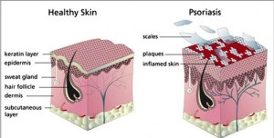 causes-of-psoriasis